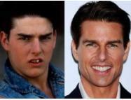 Знаменитости до и после похода к дантисту (ФОТО)