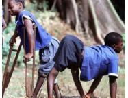 Самые странные и необъяснимые болезни в мире (ФОТО)
