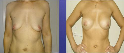 увеличить грудь гормонами