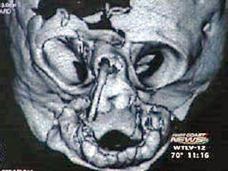 Настоящий шок испытали врачи больницы американского города Джексонвиль. У местной жительницы ребенок родился без лица. Это рентген черепа новорожденной... Еще на стадии беременности мама ребенка Тэмми подозревала, что что-то не так. Врачи говорили, что у девочки деформирована губа. И это был максиму неприятностей, на которые рассчитывали Уетморы...
